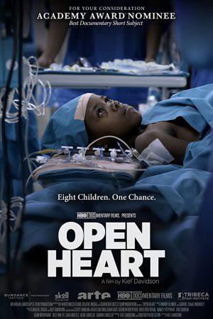 مستند کوتاه Open Heart